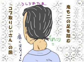 コブ取りじぃちゃん