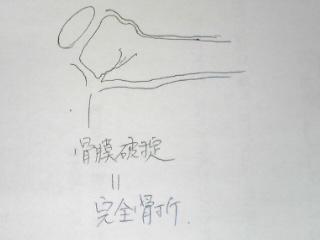kannzennFr