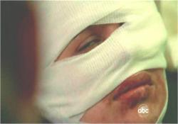 顔に重度の傷を負ったイラーナの過去