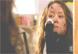 こんな傷、ベビーパウダーで充分よ