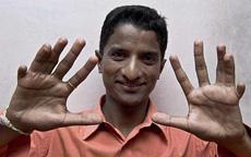 全部で26本の指を持つ男性