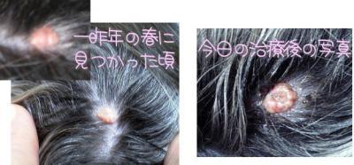 つぶれた乳頭腫