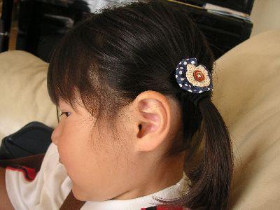 髪留め-2