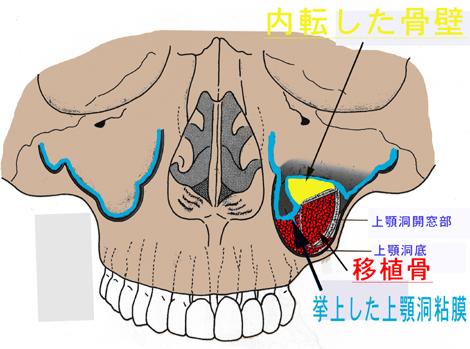 sinus2