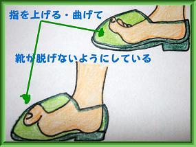 浮き指イラスト4