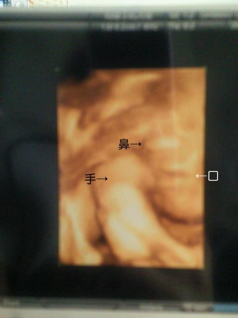 4d2.jpg