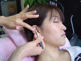耳のつぼに金粒を貼り込んで、無理なく食事量をコントロールします。