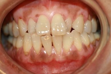 歯肉ピーリング1