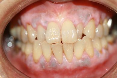 歯肉ピーリング2