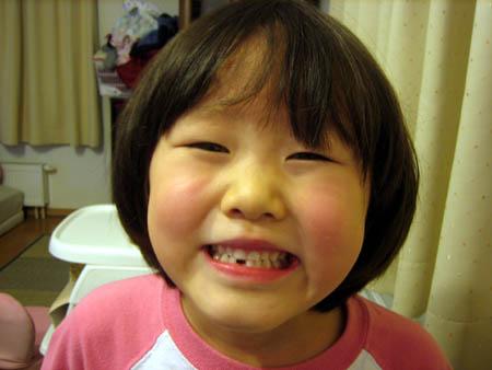 ちーちゃんはじめて歯が抜けたよ。