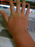 手(むくみ)