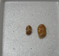 大・小の納豆