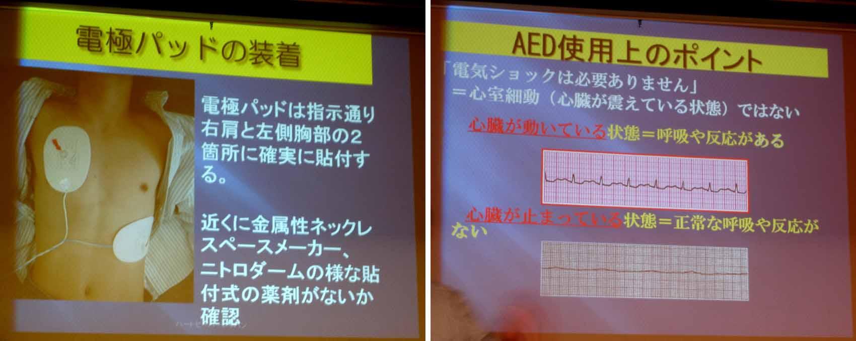 AED使用上のポイント