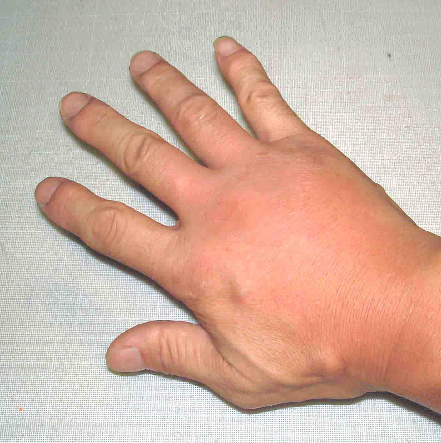 腫れた右手の状態(16日17:36)