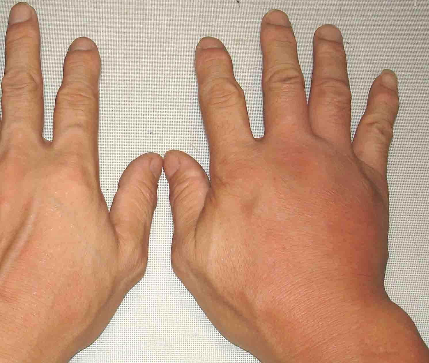 腫れてきた右手と左手の比較(16日17:34)