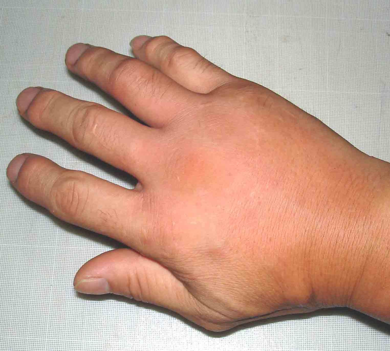 腫れた右手の状態(16日22:02)