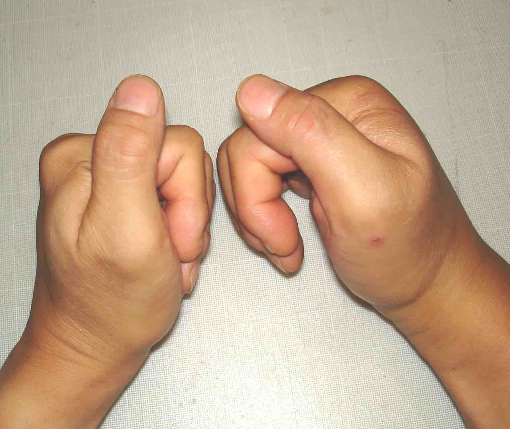 腫れて指を曲げられない状態(17日11:14)