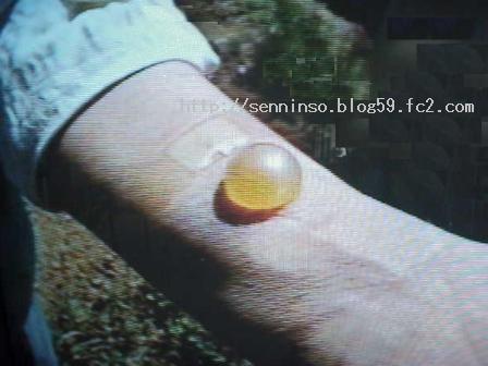 仙人草治療による水疱
