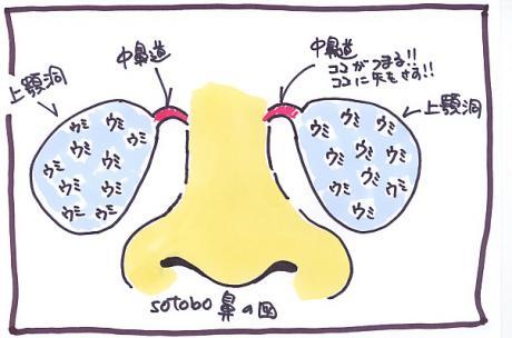 副鼻腔-2