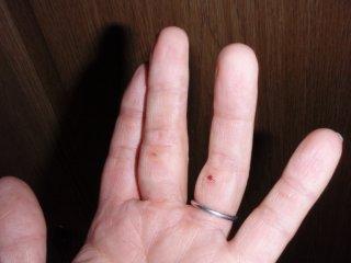 ボルダリングの傷