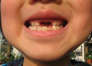 あすみの歯ぬけ